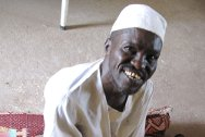 Nyala Orthopaedic Centre, South Darfur. Wazir lost his right leg in an accident two years ago.