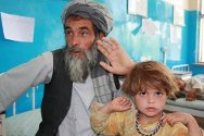 Mirwais hospital, Kandahar. Mohammad Raouf  brought his daughter, Madina, to the hospital to have her bent fingers straightened.