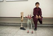 Pakistan Institute of Prosthetic and Orthotic Sciences, Peshawar, Khyber Pakhtunkhwa province, Pakistan. A young boy at the ICRC-supported centre, with his new artificial leg.