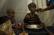 Somalia. Undernourished children at a hospital in Mogadishu.