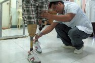 Davao Jubilee Foundation, Philippines. Maria takes her first steps on artificial legs, assisted by a therapist who will help her learn to walk with them. She lost both legs during violence in 2010.
