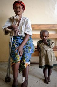 DR Congo. Bethesda hospital in Goma, North Kivu. A woman sitting next to her daughter. She suffered a gunshot wound to her ankle while collecting firewood from the forest near her home.