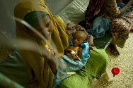 Somalia, Mogadishu. A woman with her malnourished child at a hospital.