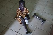 Physical rehabilitation centre co-run by the ICRC, Juba, South Sudan. This six-year-old boy lost a leg after the truck in which he was travelling hit a mine.
