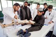 Kabul, ICRC orthopaedic centre. Young patient with poliomyelitis is provided with an orthesis and physiotherapy.