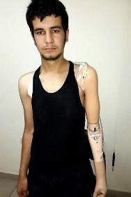 This man was wounded in the conflict in Syria. The ICRC fitted him with an artificial arm.