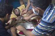 Qussayr, Homs governorate, Syria. A wounded person is treated at a field hospital.