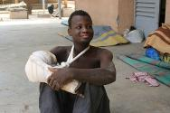 A young man relaxes in front of his hospital room. He suffered a hand injury during the fighting that took place in January 2013, and is receiving treatment from ICRC doctors.