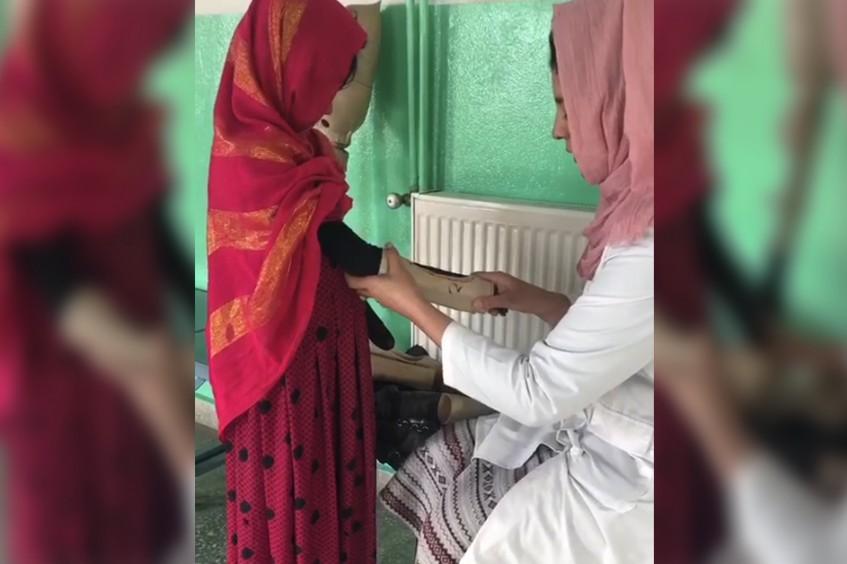 Afganistán: Shazima, la niña que sobrevivió a una explosión