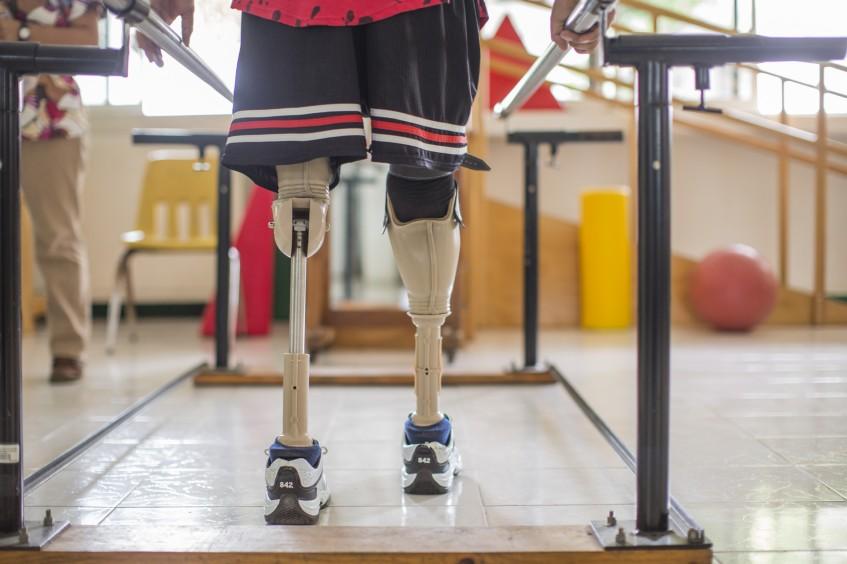 Migrantes con amputaciones se rehabilitan en México para volver a caminar