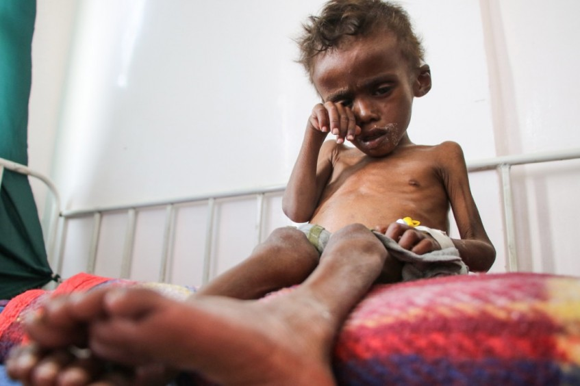Women, children, men are dying every day in Yemen. This has to stop
