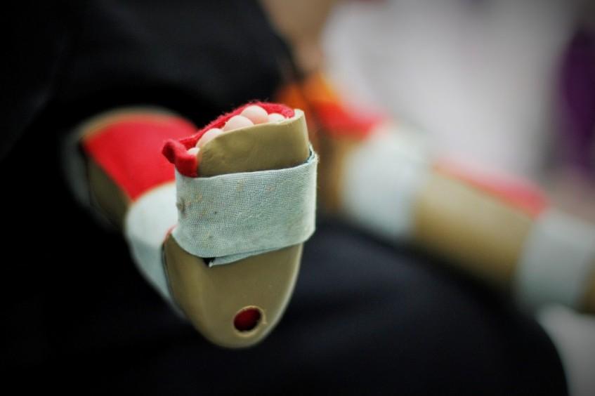 巴基斯坦:为畸形足患者提供帮助