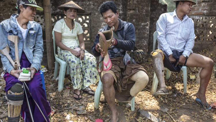 Myanmar: Repair of prostheses close to home brings hope