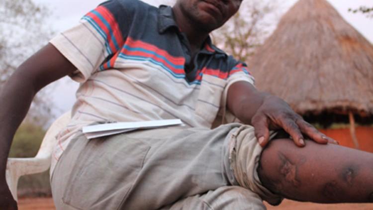 Zimbabwe : vivre dans la crainte d'un ennemi invisible