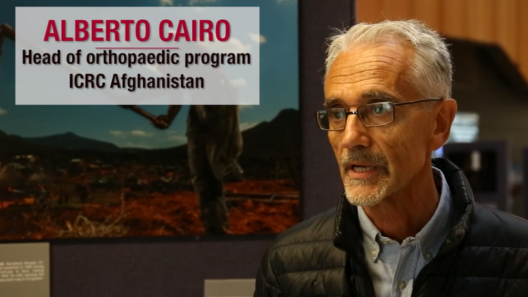 War wounded in Afghanistan: Restoring dignity amid the darkness