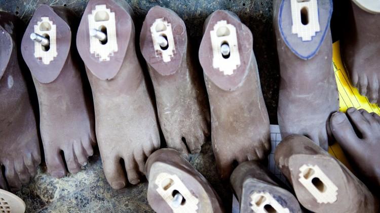 Soudan du Sud : une jambe artificielle transforme le handicap en capacité