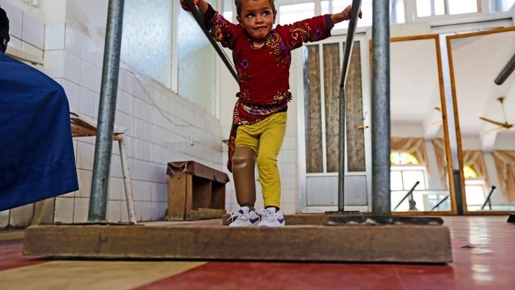 也门:三岁的哈亚特走出了康复中心