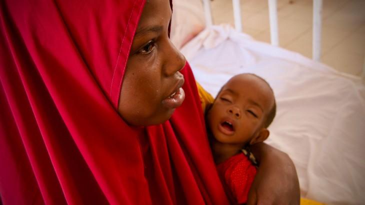 Somalie : forte augmentation du nombre d'enfants traités dans les centres nutritionnels