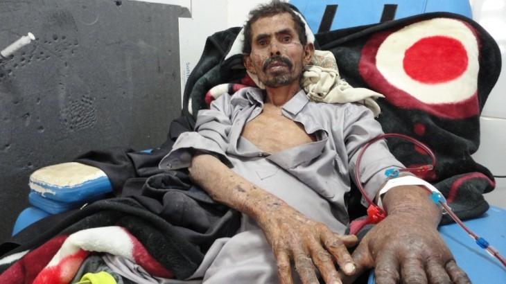 Йемен: настоятельно призываем держать границы открытыми для поставок медикаментов