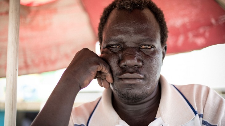 Fighting hardship and disability in South Sudan: Yakobo's story