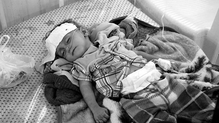 """Yémen : en visite dans le pays, le président du CICR regrette """"les souffrances inutiles"""""""