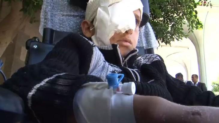 Yémen : la lente agonie de la population n'est pas irréversible, améliorer son sort est possible