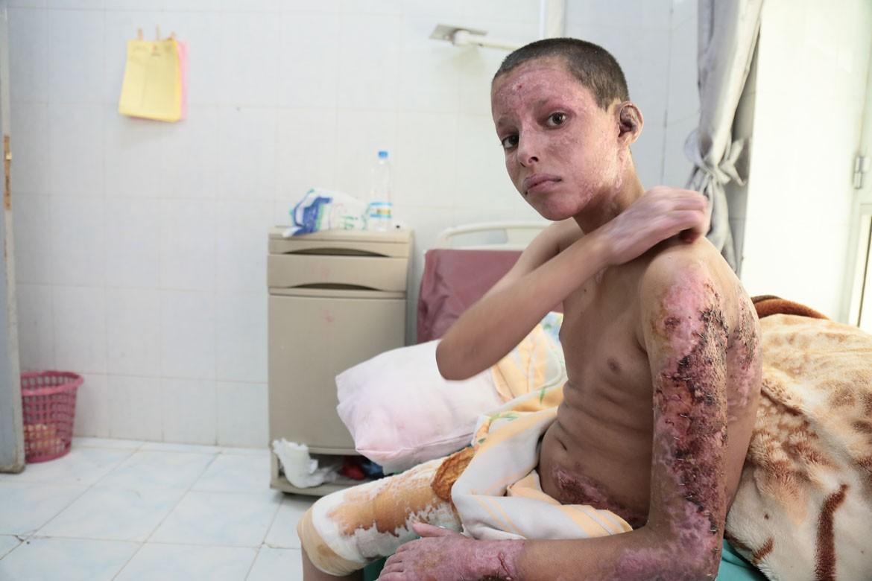 联合国表示,过去六周的密集空袭和地面激战导致1400多人遇难,大约6000人受伤,伤亡人员中有很多是平民。阿卜杜拉•萨利赫15岁,家住伊卜省,空袭引爆了停在他家门口的油罐车,他被严重烧伤,还有6名家人在爆炸中身亡。