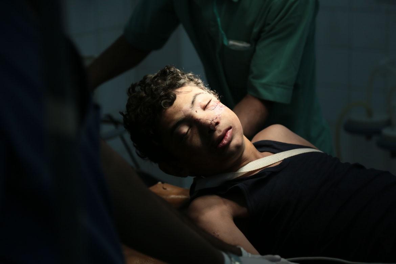 也门卫生系统疲于应对不断涌入的伤员,挽救生命的药品和设备都严重短缺。纳西姆•哈立迪(Naseem al-Khaledi)在萨那的法杰-阿坦(Fajj Attan)区空袭中受伤,颌面部大面积骨折。
