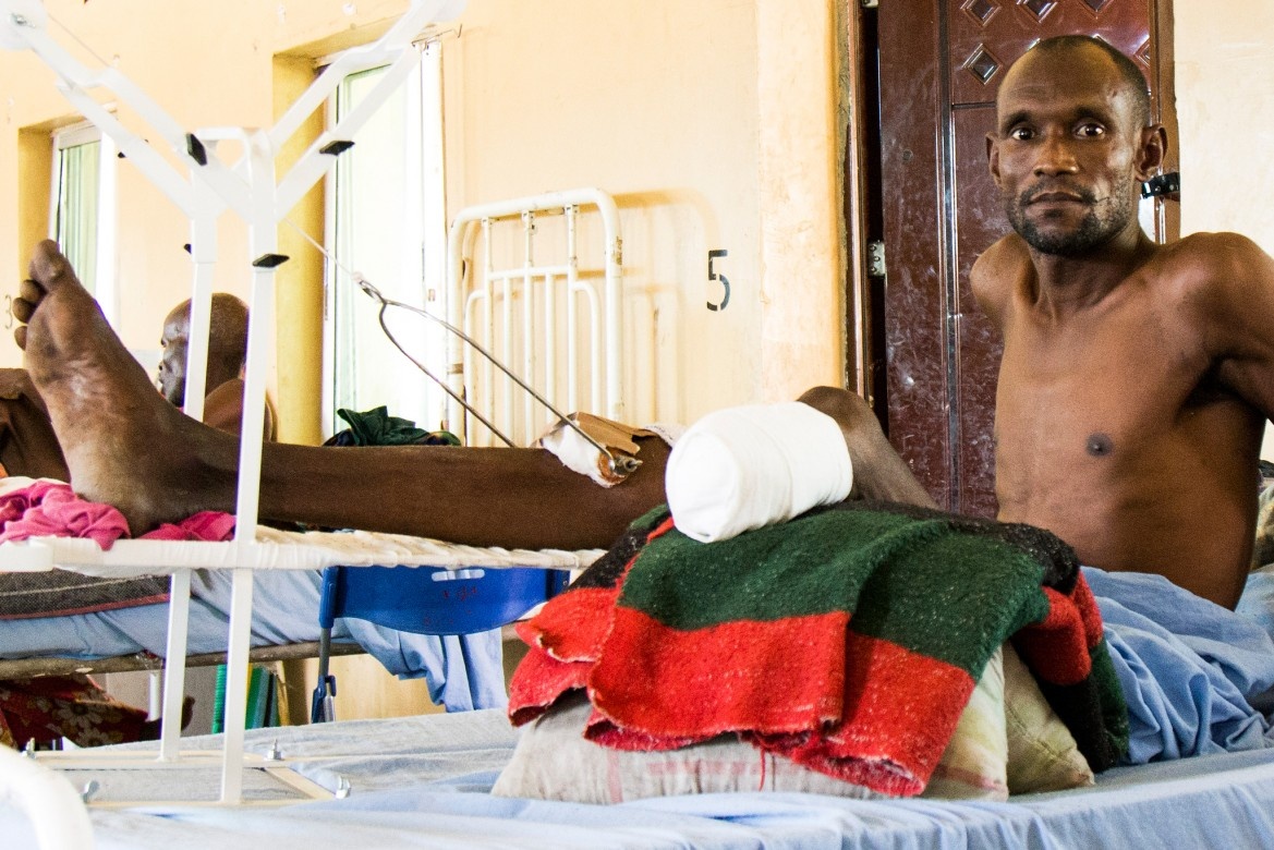 A man who has undergone the amputation of his left leg recovers in Maiduguri State Specialist Hospital.
