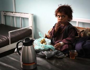 """أفغانستان: عنبر الأطفال الجديد في """"مرويس"""" يستقبل حالات تفوق طاقته الاستيعابية"""