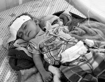 Йемен: президент МККК посетил страну, осудил ненужные страдания