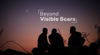 Beyond visible scars: Responding to mental health and psychosocial needs