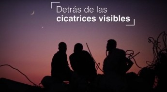 Detrás de las cicatrices visibles: respuesta a las necesidades psicosociales y en salud mental