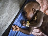 Preços de alimentos disparam e geram alto risco de desnutrição em zonas de conflito