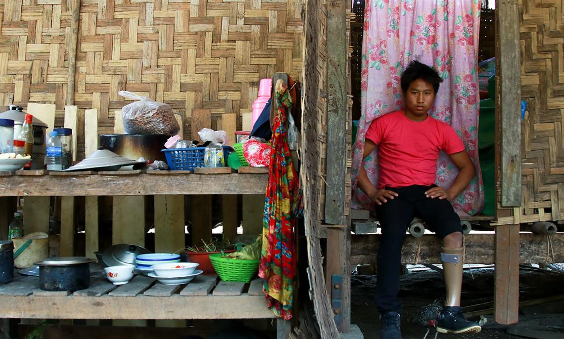 缅甸:被地雷击碎的童年梦想