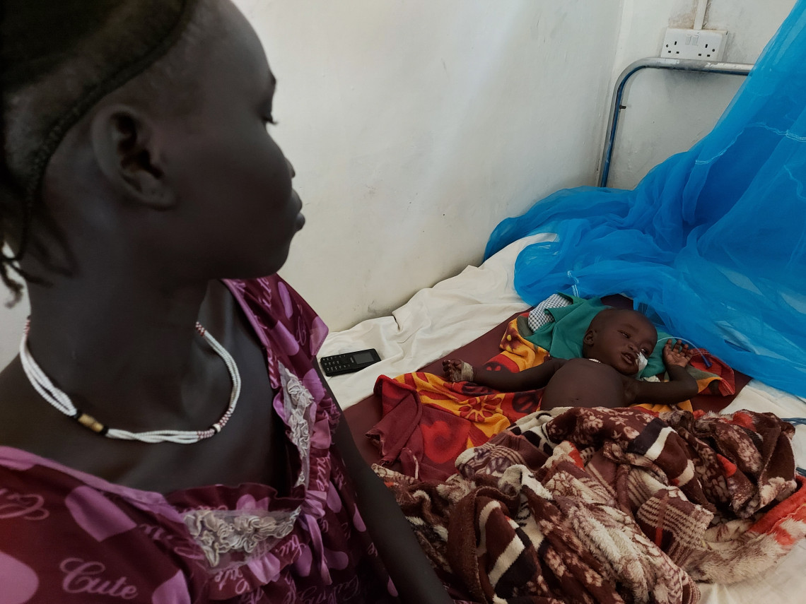 Malnourished girl Akobo County Hospital, Robert Mardini visit to South Sudan. Lucien Christen / ICRC.